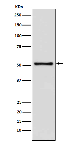 Figure 1. Western blot analysis of DNTT using anti-DNTT antibody in Jurkat cell lysate.(M05546).<br>Electrophoresis was performed on a 5-20% SDS-PAGE gel at 70V (Stacking gel) / 90V (Resolving gel) for 2-3 hours. The sample well of each lane was loaded with 50ug of sample under reducing conditions. <br>After Electrophoresis, proteins were transferred to a Nitrocellulose membrane at 150mA for 50-90 minutes. Blocked the membrane with 5% Non-fat Milk/ TBS for 1.5 hour at RT. The membrane was incubated with rabbit anti-DNTT antigen affinity purified polyclonal antibody (Catalog # M05546) at 0.5 ug/mL overnight at 4°C, then washed with TBS-0.1%Tween 3 times with 5 minutes each and probed with a goat anti-Rabbit IgG IgG-HRP secondary antibody at a dilution of 1:10000 for 1.5 hour at RT. The signal is developed using an Enhanced Chemiluminescent detection (ECL) kit (Catalog # SA1022) with Tanon 5200 system. A specific band was detected for DNTT.