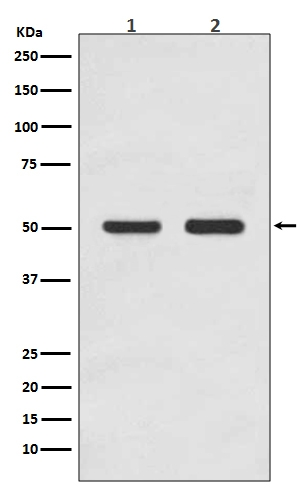 Western blot analysis of AP2M1 expression in (1) HEK293 cell lysate; (2) MCF-7 cell lysate (M06179). <br>Electrophoresis was performed on a 5-20% SDS-PAGE gel at 70V (Stacking gel) / 90V (Resolving gel) for 2-3 hours. The sample well of each lane was loaded with 50ug of sample under reducing conditions. <br> After Electrophoresis, proteins were transferred to a Nitrocellulose membrane at 150mA for 50-90 minutes. Blocked the membrane with 5% Non-fat Milk/ TBS for 1.5 hour at RT. The membrane was incubated with rabbit anti-AP2M1 monoclonal antibody (Catalog # M06179)  overnight at 4°C, then washed with TBS-0.1%Tween 3 times with 5 minutes each and probed with a goat anti-rabbit IgG-HRP secondary antibody at a dilution of 1:10000 for 1.5 hour at RT. The signal is developed using an Enhanced Chemiluminescent detection (ECL) kit (Catalog # EK1002) with Tanon 5200 system. A specific band was detected for AP2M1