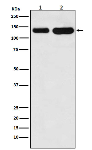 Figure 1. Western blot analysis of CDH6 using anti-CDH6 antibody (M06353).<br>Electrophoresis was performed on a 5-20% SDS-PAGE gel at 70V (Stacking gel) / 90V (Resolving gel) for 2-3 hours. The sample well of each lane was loaded with 50ug of sample under reducing conditions. <br>After Electrophoresis, proteins were transferred to a Nitrocellulose membrane at 150mA for 50-90 minutes. Blocked the membrane with 5% Non-fat Milk/ TBS for 1.5 hour at RT. The membrane was incubated with rabbit anti-CDH6 antigen affinity purified polyclonal antibody (Catalog # M06353) at 0.5 ug/mL overnight at 4°C, then washed with TBS-0.1%Tween 3 times with 5 minutes each and probed with a goat anti-Rabbit IgG IgG-HRP secondary antibody at a dilution of 1:10000 for 1.5 hour at RT. The signal is developed using an Enhanced Chemiluminescent detection (ECL) kit (Catalog # SA1022) with Tanon 5200 system. A specific band was detected for CDH6.