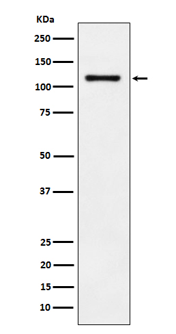 Figure 1. Western blot analysis of CDH17 using anti-CDH17 antibody (M06389).<br>Electrophoresis was performed on a 5-20% SDS-PAGE gel at 70V (Stacking gel) / 90V (Resolving gel) for 2-3 hours. The sample well of each lane was loaded with 50ug of sample under reducing conditions. <br>After Electrophoresis, proteins were transferred to a Nitrocellulose membrane at 150mA for 50-90 minutes. Blocked the membrane with 5% Non-fat Milk/ TBS for 1.5 hour at RT. The membrane was incubated with rabbit anti-CDH17 antigen affinity purified polyclonal antibody (Catalog # M06389) at 0.5 ug/mL overnight at 4°C, then washed with TBS-0.1%Tween 3 times with 5 minutes each and probed with a goat anti-Rabbit IgG IgG-HRP secondary antibody at a dilution of 1:10000 for 1.5 hour at RT. The signal is developed using an Enhanced Chemiluminescent detection (ECL) kit (Catalog # SA1022) with Tanon 5200 system. A specific band was detected for CDH17.