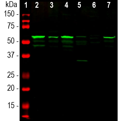 Western blot analysis of spinal cord tissue lysates (lanes 2-5) and cell lysates (lanes 6 and 7) using chicken pAb to peripherin, M06787-2, dilution 1:10,000 in green: [1] protein standard (red), [2] rat, [3] mouse, [4] pig, [5] cow spinal cord; [6] SH-SY5Y, and [7] PC12 cells. The band at 57kDa corresponds to peripherin protein.
