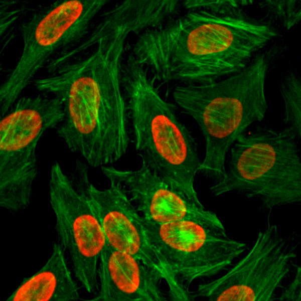 Figure 3. ICC result<br>Immunocytochemistry of HeLa cells, using Dimethyl-Histone H3 (Lys9) Rabbit mAb RM151 (red). Actin filaments have been labeled with fluorescein phalloidin (green).