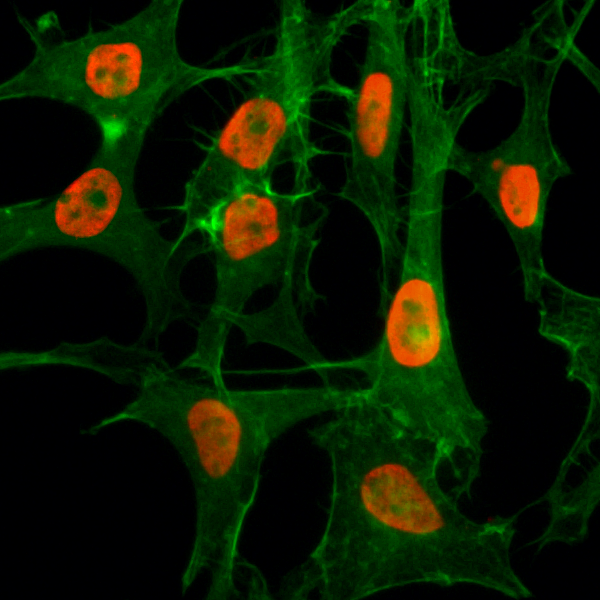 Figure 4. ICC result<br>Immunocytochemistry of HeLa cells treated with sodium butyrate, using Acetyl-Histone H3 (Lys56) Rabbit mAb RM179 (red). Actin filaments have been labeled with fluorescein phalloidin (green).