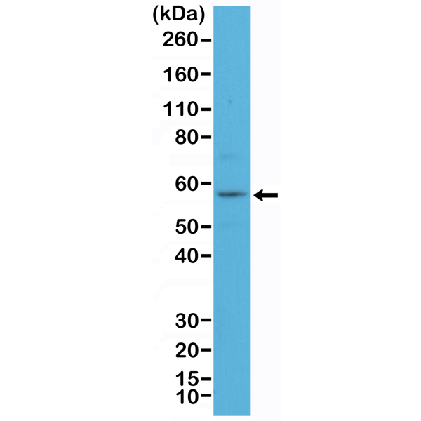 Figure 1. Western Blotting result<br>Western Blot of A431 cell lysate using anti-CK-4 rabbit monoclonal antibody (Clone RM355) at a 1:100 dilution.