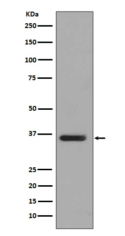 Western blot analysis of PP2A alpha+beta expression in T47 D cell lysate (M07661). <br>Electrophoresis was performed on a 5-20% SDS-PAGE gel at 70V (Stacking gel) / 90V (Resolving gel) for 2-3 hours. The sample well of each lane was loaded with 50ug of sample under reducing conditions. <br> After Electrophoresis, proteins were transferred to a Nitrocellulose membrane at 150mA for 50-90 minutes. Blocked the membrane with 5% Non-fat Milk/ TBS for 1.5 hour at RT. The membrane was incubated with rabbit anti-PPP2CB monoclonal antibody (Catalog # M07661)  overnight at 4℃, then washed with TBS-0.1%Tween 3 times with 5 minutes each and probed with a goat anti-rabbit IgG-HRP secondary antibody at a dilution of 1:10000 for 1.5 hour at RT. The signal is developed using an Enhanced Chemiluminescent detection (ECL) kit (Catalog # EK1002) with Tanon 5200 system. A specific band was detected for PPP2CB