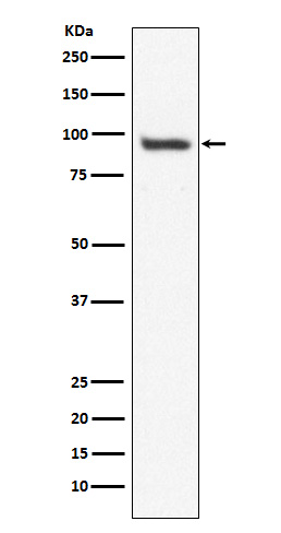Figure 1. Western blot analysis of USP13 using anti-USP13 antibody (M07816).<br>Electrophoresis was performed on a 5-20% SDS-PAGE gel at 70V (Stacking gel) / 90V (Resolving gel) for 2-3 hours. The sample well of each lane was loaded with 50ug of sample under reducing conditions. <br>After Electrophoresis, proteins were transferred to a Nitrocellulose membrane at 150mA for 50-90 minutes. Blocked the membrane with 5% Non-fat Milk/ TBS for 1.5 hour at RT. The membrane was incubated with rabbit anti-USP13 antigen affinity purified polyclonal antibody (Catalog # M07816) at 0.5 ug/mL overnight at 4°C, then washed with TBS-0.1%Tween 3 times with 5 minutes each and probed with a goat anti-Rabbit IgG IgG-HRP secondary antibody at a dilution of 1:10000 for 1.5 hour at RT. The signal is developed using an Enhanced Chemiluminescent detection (ECL) kit (Catalog # SA1022) with Tanon 5200 system. A specific band was detected for USP13.