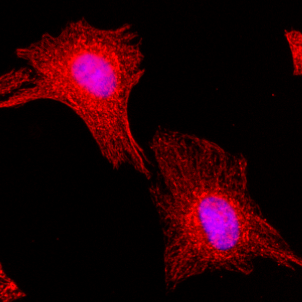 Figure 2. ICC result<br>Immunocytochemical staining of HeLa cells, using Anti-?-Tubulin RevMAb Clone RM113 at 1/200 dilution (red). Nuclei have been labeled with DAPI (blue).