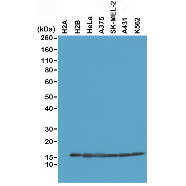 Figure 1. Western Blotting result<br>Western Blot of recombinant Histone H2A, H2B, the whole cell lysates of HeLa, A375, SK-MEL-2, A431, and K562, using RM230 at 0.2 ug/mL