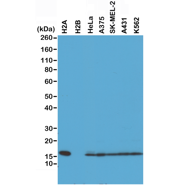 Figure 1. Western Blotting result<br>Western Blot of recombinant Histone H2A, H2B, the whole cell lysates of HeLa, A375, SK-MEL-2, A431, and K562, using RM225 at 0.5 ug/mL