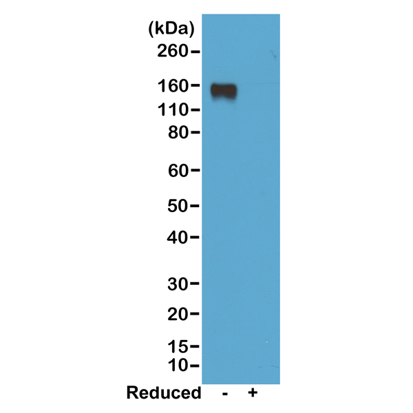 Figure 1. Western Blotting result<br>Western blot of nonreduced(-) and reduced(+) mouse IgG2a, using 0.5ug/mL of RevMAb clone RM219. This antibody reacts to nonreduced IgG2a (~150 kDa).