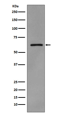 Figure 1. Western blot analysis of SRC using anti-SRC antibody (MP00107) in A431 cell lysate treated with pervanadate.
