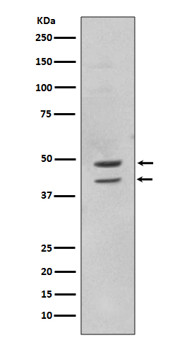 Western blot analysis of MAPK8 using anti-MAPK8 antibody (MP02608).<br>Electrophoresis was performed on a 5-20% SDS-PAGE gel at 70V (Stacking gel) / 90V (Resolving gel) for 2-3 hours. The sample well of each lane was loaded with 50ug of sample under reducing conditions. <br>After Electrophoresis, proteins were transferred to a Nitrocellulose membrane at 150mA for 50-90 minutes. Blocked the membrane with 5% Non-fat Milk/ TBS for 1.5 hour at RT. The membrane was incubated with rabbit anti-MAPK8 antigen affinity purified polyclonal antibody (Catalog # MP02608) at 0.5 ug/mL overnight at 4°C, then washed with TBS-0.1%Tween 3 times with 5 minutes each and probed with a goat anti-Rabbit IgG IgG-HRP secondary antibody at a dilution of 1:10000 for 1.5 hour at RT. The signal is developed using an Enhanced Chemiluminescent detection (ECL) kit (Catalog # SA1022) with Tanon 5200 system. A specific band was detected for MAPK8.