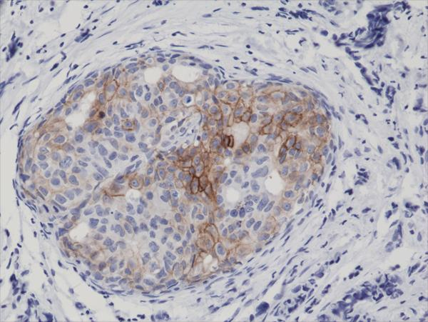 Figure 2. IHC result<br>Immunohistochemical staining of formalin fixed and paraffin embedded human breast cancer tissue sections using Anti-Phospho-EGFR (Tyr1173) Rabbit Monoclonal Antibody (clone RM269) at a 1:5000 dilution.