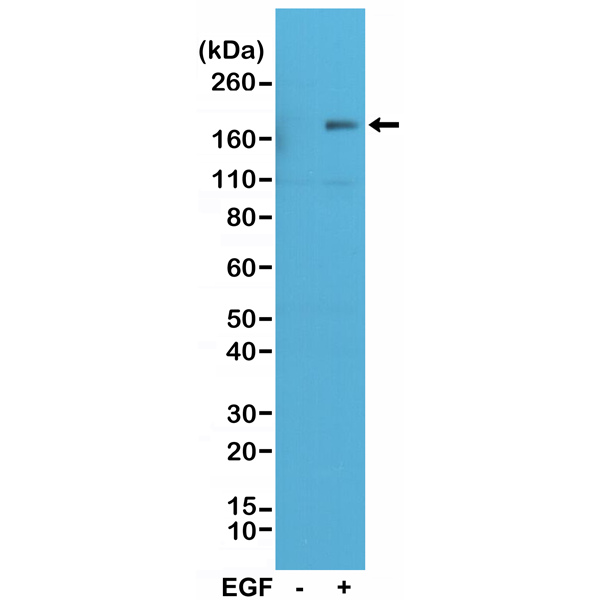 Figure 1. Western Blotting result<br>Western Blot of A431 cell nontreated (-) or treated (+) with EGF, using Anti-Phospho-EGFR (Tyr1173) Rabbit Monoclonal Antibody (clone RM269) at a 1:500 dilution, showed Phospho-EGFR (Tyr1173) in EGF-treated A431 cells.