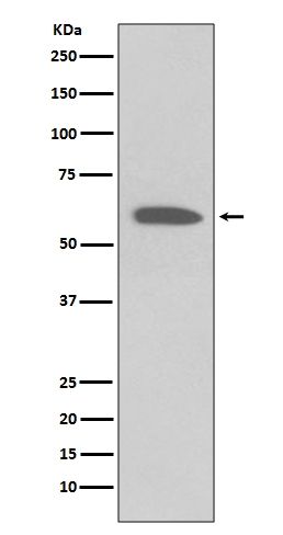 Western blot analysis on 2 NIH/3T3 cell lysate treated with PDGF using Phospho-Akt(Ser473) Antibody (P00024-5). <br>Electrophoresis was performed on a 5-20% SDS-PAGE gel at 70V (Stacking gel) / 90V (Resolving gel) for 2-3 hours. The sample well of each lane was loaded with 50ug of sample under reducing conditions. <br> After Electrophoresis, proteins were transferred to a Nitrocellulose membrane at 150mA for 50-90 minutes. Blocked the membrane with 5% Non-fat Milk/ TBS for 1.5 hour at RT. The membrane was incubated with rabbit anti-AKT1 monoclonal antibody (Catalog # P00024-5)  overnight at 4