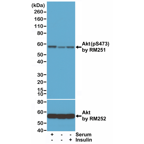 Figure 1. Western Blotting result<br>Western Blot of lysates from 293 cells either, grown in medium with serum, serum starved, or insulin treated. Using Anti-Phospho-Akt (Ser473) RM251 at a 1:1000 dilution or anti-Akt1 RM252 at a 1:1000 dilution.