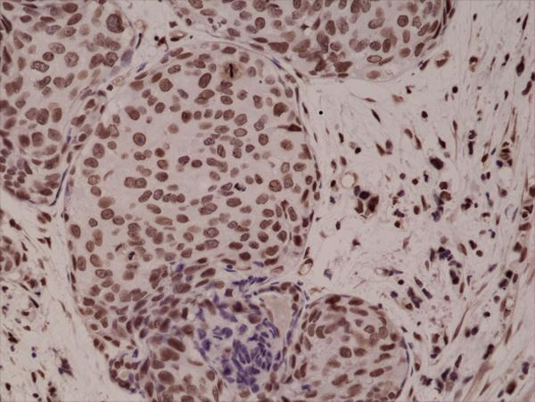 Figure 2. IHC result<br>Immunohistochemical staining of formalin fixed and paraffin embedded human breast cancer tissue sections using Anti-Phospho-p38 MAPK (Thr180/Tyr182) RM243 at a 1:1000 dilution.