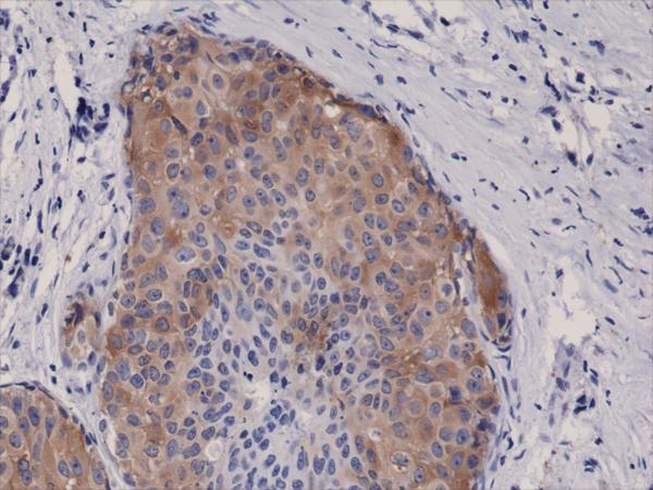 Figure 2. IHC result<br>Immunohistochemical staining of formalin fixed and paraffin embedded human breast cancer tissue sections using Anti-Phospho-Acetyl CoA Carboxylase (Ser79) Rabbit Monoclonal Antibody (clone RM270) at a 1:5000 dilution.