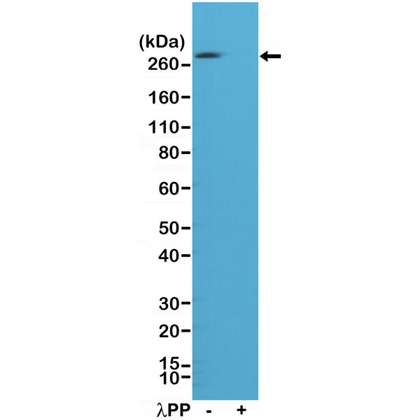 Figure 1. Western Blotting result<br>Western Blot of A431 cell lysates, nontreated (-) or treated (+) with Lambda Protein Phosphatase (?PP), using Anti-Phospho-Acetyl CoA Carboxylase (Ser79) Rabbit Monoclonal Antibody (Clone RM269) at a 1:1000 dilution.