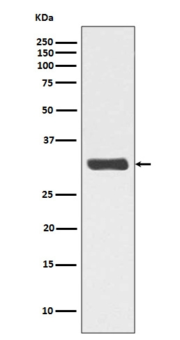 Western blot analysis of Phospho-RPA2 (T21) expression in HeLa cell lysate treated with Calyculin A (P02067-1).