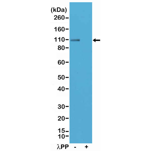 Figure 1. Western Blotting result<br>Western Blot of mouse brain tissue lysate, non-treated (-) or dephosphorylated (+) with Lambda Protein Phosphatase (?PP), using Anti-Phospho-AMPA Receptor (GluR 1) (Ser845) rabbit monoclonal antibody (clone RM296) at a 1:200 dilution.