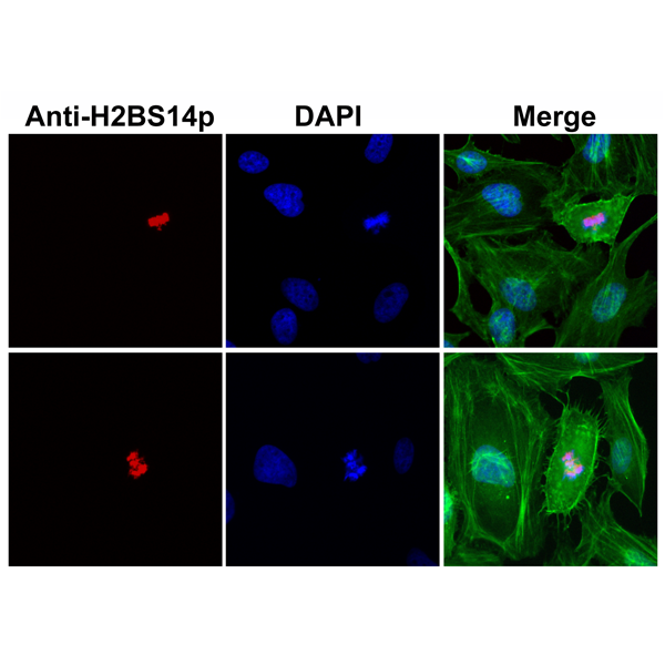 Figure 2. ICC result<br>Immunocytochemistry of HeLa cells using Anti-Phospho-Histone H2B (Ser14) Rabbit mAb RM238 (red) and DAPI (blue). Actin filaments have been labeled with fluorescein phalloidin (green).