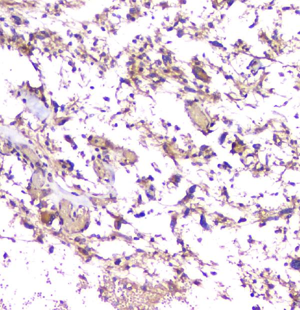 Figure 2. IHC analysis of APP using anti-APP antibody (PB9091).<br>APP was detected in paraffin-embedded section of human glioma tissue. Heat mediated antigen retrieval was performed in citrate buffer (pH6, epitope retrieval solution) for 20 mins. The tissue section was blocked with 10% goat serum. The tissue section was then incubated with 1μg/ml rabbit anti-APP Antibody (PB9091) overnight at 4°C. Biotinylated goat anti-rabbit IgG was used as secondary antibody and incubated for 30 minutes at 37°C. The tissue section was developed using Strepavidin-Biotin-Complex (SABC)(Catalog # SA1022) with DAB as the chromogen. <br>