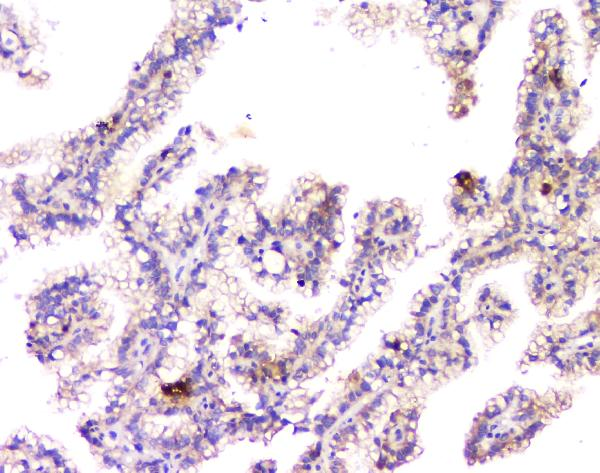 Figure 4. IHC analysis of APP using anti-APP antibody (PB9091).<br>APP was detected in paraffin-embedded section of human renal cancer tissue. Heat mediated antigen retrieval was performed in citrate buffer (pH6, epitope retrieval solution) for 20 mins. The tissue section was blocked with 10% goat serum. The tissue section was then incubated with 1μg/ml rabbit anti-APP Antibody (PB9091) overnight at 4°C. Biotinylated goat anti-rabbit IgG was used as secondary antibody and incubated for 30 minutes at 37°C. The tissue section was developed using Strepavidin-Biotin-Complex (SABC)(Catalog # SA1022) with DAB as the chromogen. <br>