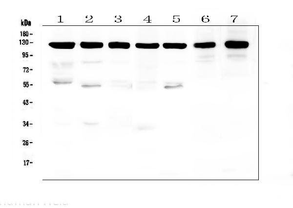 Figure 1. Western blot analysis of APP using anti-APP antibody (PB9091). <br>Electrophoresis was performed on a 5-20% SDS-PAGE gel at 70V (Stacking gel) / 90V (Resolving gel) for 2-3 hours. The sample well of each lane was loaded with 50ug of sample under reducing conditions. <br>Lane 1: human Hela whole cell lysates,<br>Lane 2: human U-87MG whole cell lysates,<br>Lane 3: human T-47D whole cell lysates,<br>Lane 4: human A549 whole cell lysates,<br>Lane 5: human U2OS whole cell lysates,<br>Lane 6: rat brain tissue lysates,<br>Lane 7: mouse brain tissue lysates. <br>After Electrophoresis, proteins were transferred to a Nitrocellulose membrane at 150mA for 50-90 minutes. Blocked the membrane with 5% Non-fat Milk/ TBS for 1.5 hour at RT. The membrane was incubated with rabbit anti-APP antigen affinity purified polyclonal antibody (Catalog # PB9091) at 0.5 μg/mL overnight at 4°C, then washed with TBS-0.1%Tween 3 times with 5 minutes each and probed with a goat anti-rabbit IgG-HRP secondary antibody at a dilution of 1:10000 for 1.5 hour at RT. The signal is developed using an Enhanced Chemiluminescent detection (ECL) kit (Catalog # EK1002) with Tanon 5200 system. A specific band was detected for APP at approximately 120KD. The expected band size for APP is at 87KD.