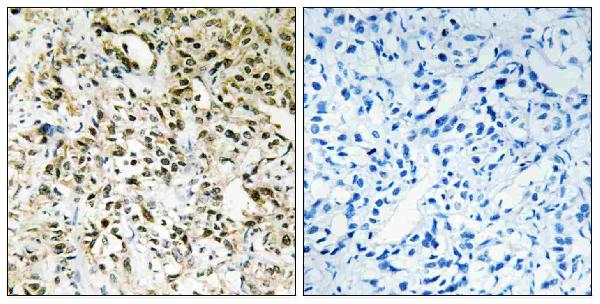 Immunohistochemistry analysis of paraffin-embedded human liver carcinoma tissue, using PPHLN Antibody. The picture on the right is blocked with the synthesized peptide.