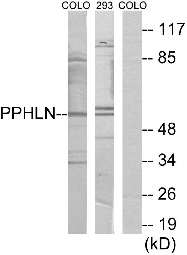 Western blot analysis of lysates from COLO and 293 cells, using PPHLN Antibody. The lane on the right is blocked with the synthesized peptide.