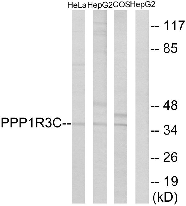 Western blot analysis of lysates from HepG2, HeLa, and COS7 cells, using PPP1R3C Antibody. The lane on the right is blocked with the synthesized peptide.