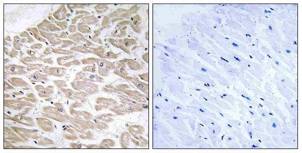 Immunohistochemistry analysis of paraffin-embedded human heart tissue, using RAD Antibody. The picture on the right is blocked with the synthesized peptide.