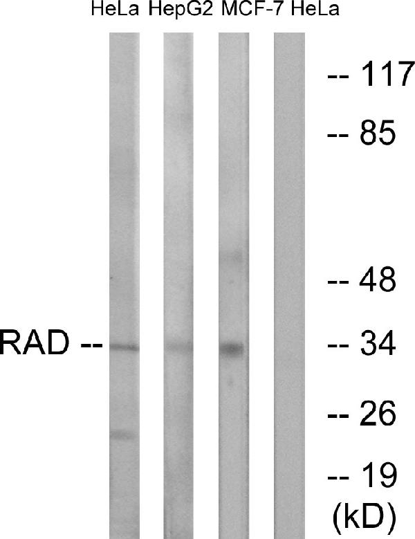 Western blot analysis of lysates from HeLa and HepG2/MCF-7 cells, using RAD Antibody. The lane on the right is blocked with the synthesized peptide.