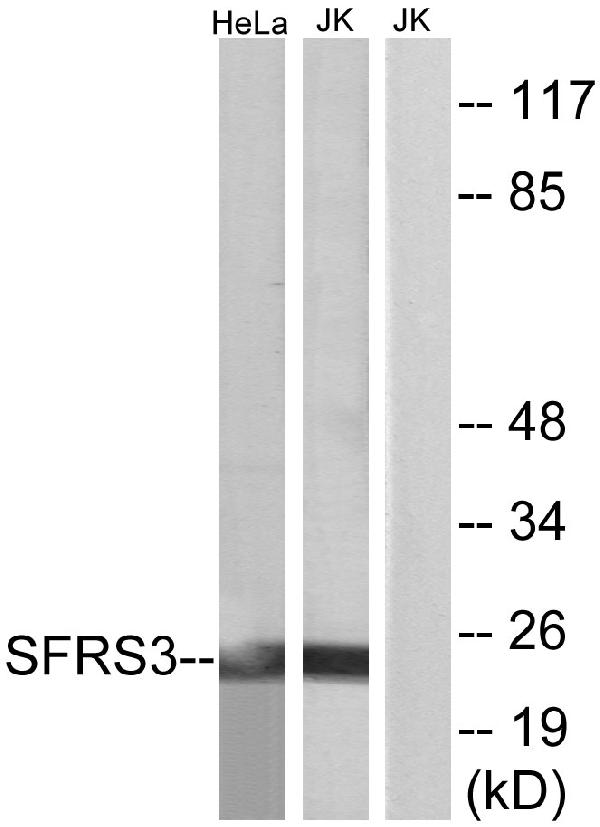Western blot analysis of lysates from HeLa and Jurkat cells, using SFRS3 Antibody. The lane on the right is blocked with the synthesized peptide.