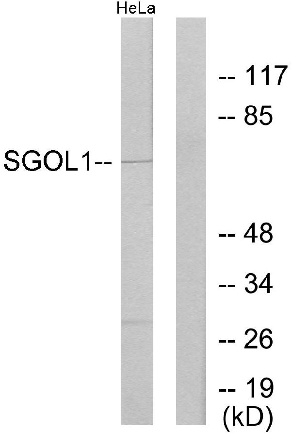 Western blot analysis of lysates from HeLa cells, using SGOL1 Antibody. The lane on the right is blocked with the synthesized peptide.