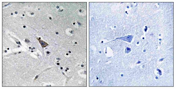 Immunohistochemistry analysis of paraffin-embedded human brain, using SLC6A16 Antibody. The picture on the right is blocked with the synthesized peptide.