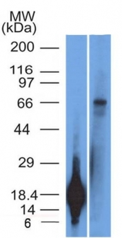 Western Blot of TRIM29 Recombinant protein fragment & A431 Cell Lysate TRIM29 Monoclonal Antibody (TRIM29/1042).