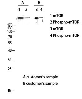 Western Blot (WB) analysis of lysis using mTOR antibody.