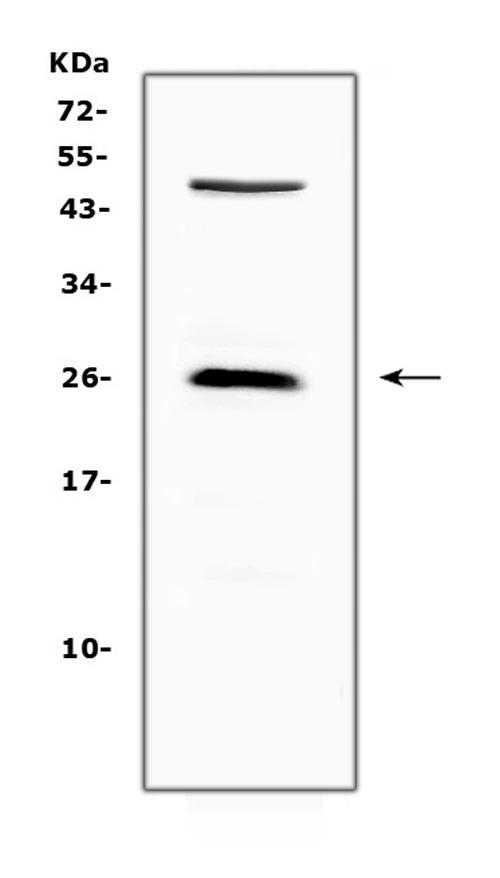 Figure 1. Western blot analysis of CTLA4 using anti-CTLA4 antibody (A00020-1).
