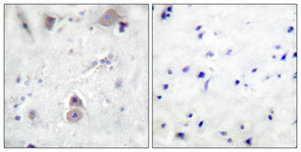 <h4>Figure 2. Immunohistochemistry validation of APP using Anti-Phospho-Amyloid-beta (T743) APP Antibody (A00081T743).</h4> Immunohistochemical analysis of paraffin-embedded Human breast cancer. Antibody was diluted at 1:100 (4°C