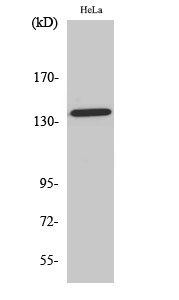 <h4>Figure 1. Western blotting validation for Anti-Phospho-Amyloid-beta (T743) APP Antibody A00081T743</h4> Western Blot (WB) analysis of specific cells using Phospho-Amyloid-beta (T743) polyclonal antibody.<br> Electrophoresis was performed on a SDS-PAGE gel. To determine SDS-PAGE gel concentration