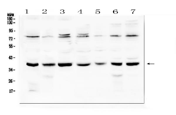 Figure 1. Western blot analysis of Rad51 using anti-Rad51 antibody (A00088). <br>Electrophoresis was performed on a 5-20% SDS-PAGE gel at 70V (Stacking gel) / 90V (Resolving gel) for 2-3 hours. The sample well of each lane was loaded with 50ug of sample under reducing conditions. <br>Lane 1: human Hela whole cell lysate,<br>Lane 2: human A431 whole cell lysate,<br>Lane 3: human 293T whole cell lysate,<br>Lane 4: human K562 whole cell lysate,<br>Lane 5: human Jurkat whole cell lysate,<br>Lane 6: human A549 whole cell lysate,<br>Lane 7: human Caco-2 whole cell lysate. <br>After Electrophoresis, proteins were transferred to a Nitrocellulose membrane at 150mA for 50-90 minutes. Blocked the membrane with 5% Non-fat Milk/ TBS for 1.5 hour at RT. The membrane was incubated with rabbit anti-Rad51 antigen affinity purified polyclonal antibody (Catalog # A00088) at 0.5 μg/mL overnight at 4°C, then washed with TBS-0.1%Tween 3 times with 5 minutes each and probed with a goat anti-rabbit IgG-HRP secondary antibody at a dilution of 1:10000 for 1.5 hour at RT. The signal is developed using an Enhanced Chemiluminescent detection (ECL) kit (Catalog # EK1002) with Tanon 5200 system. A specific band was detected for Rad51 at approximately 39KD. The expected band size for Rad51 is at 36KD.