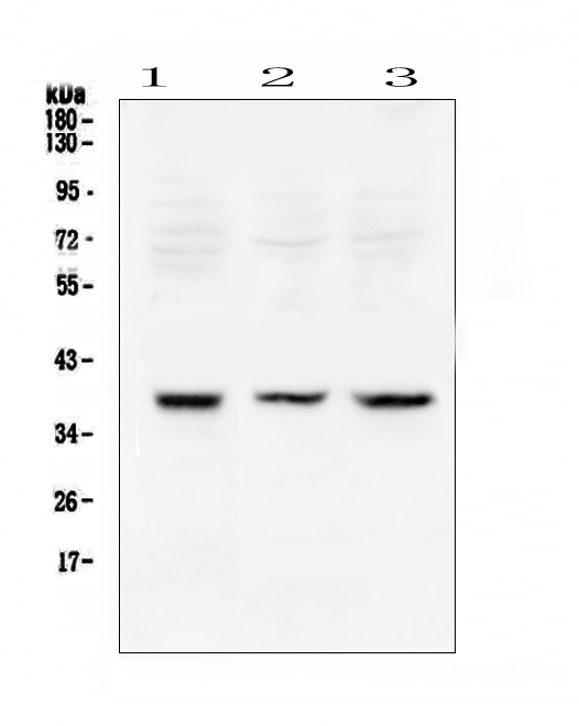 Figure 2. Western blot analysis of Rad51 using anti-Rad51 antibody (A00088). <br>Electrophoresis was performed on a 5-20% SDS-PAGE gel at 70V (Stacking gel) / 90V (Resolving gel) for 2-3 hours. The sample well of each lane was loaded with 50ug of sample under reducing conditions. <br>Lane 1: rat testis tissue lysates,<br>Lane 2: mouse testis tissue lysates,<br>Lane 3: mouse thymus tissue lysates. <br>After Electrophoresis, proteins were transferred to a Nitrocellulose membrane at 150mA for 50-90 minutes. Blocked the membrane with 5% Non-fat Milk/ TBS for 1.5 hour at RT. The membrane was incubated with rabbit anti-Rad51 antigen affinity purified polyclonal antibody (Catalog # A00088) at 0.5 μg/mL overnight at 4°C, then washed with TBS-0.1%Tween 3 times with 5 minutes each and probed with a goat anti-rabbit IgG-HRP secondary antibody at a dilution of 1:10000 for 1.5 hour at RT. The signal is developed using an Enhanced Chemiluminescent detection (ECL) kit (Catalog # EK1002) with Tanon 5200 system. A specific band was detected for Rad51 at approximately 39KD. The expected band size for Rad51 is at 36KD.