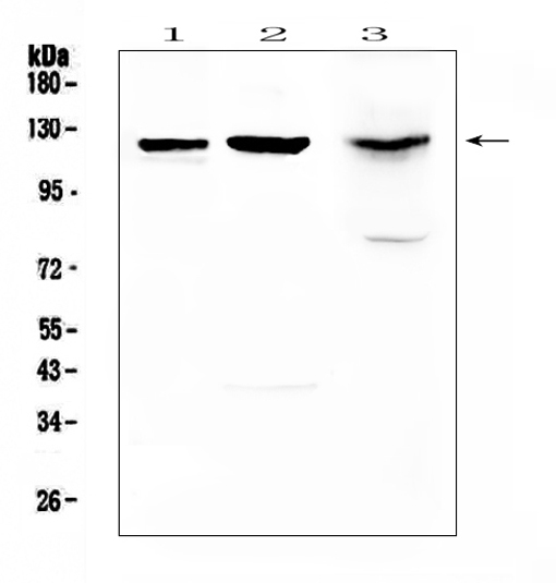 Figure 1. Western blot analysis of MUC1 using anti-MUC1 antibody (A00187). <br>Electrophoresis was performed on a 5-20% SDS-PAGE gel at 70V (Stacking gel) / 90V (Resolving gel) for 2-3 hours. The sample well of each lane was loaded with 50ug of sample under reducing conditions. <br>Lane 1: rat lung tissue lysates,<br>Lane 2: rat pancreas tissue lysates,<br>Lane 3: mouse pancreas tissue lysates.<br>After Electrophoresis, proteins were transferred to a Nitrocellulose membrane at 150mA for 50-90 minutes. Blocked the membrane with 5% Non-fat Milk/ TBS for 1.5 hour at RT. The membrane was incubated with rabbit anti-MUC1 antigen affinity purified polyclonal antibody (Catalog # A00187) at 0.5 μg/mL overnight at 4°C, then washed with TBS-0.1%Tween 3 times with 5 minutes each and probed with a goat anti-rabbit IgG-HRP secondary antibody at a dilution of 1:10000 for 1.5 hour at RT. The signal is developed using an Enhanced Chemiluminescent detection (ECL) kit (Catalog # EK1002) with Tanon 5200 system. A specific band was detected for MUC1 at approximately 122KD. The expected band size for MUC1 is at 122KD.