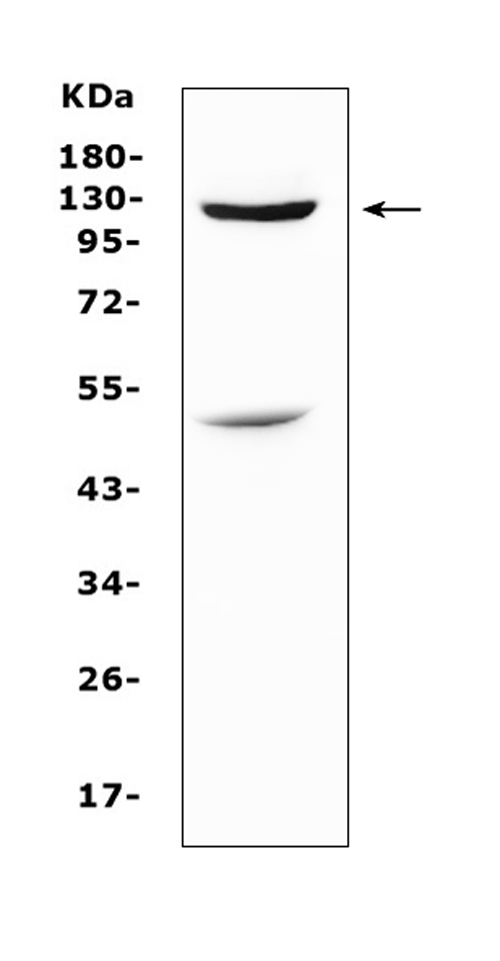 Figure 6. Western blot analysis of MUC1 using anti-MUC1 antibody (A00187). <br>Electrophoresis was performed on a 5-20% SDS-PAGE gel at 70V (Stacking gel) / 90V (Resolving gel) for 2-3 hours. The sample well of each lane was loaded with 50ug of sample under reducing conditions. <br>Lane 1: human Hela whole cell lysates <br>After Electrophoresis, proteins were transferred to a Nitrocellulose membrane at 150mA for 50-90 minutes. Blocked the membrane with 5% Non-fat Milk/ TBS for 1.5 hour at RT. The membrane was incubated with rabbit anti-MUC1 antigen affinity purified polyclonal antibody (Catalog # A00187) at 0.5 μg/mL overnight at 4°C, then washed with TBS-0.1%Tween 3 times with 5 minutes each and probed with a goat anti-rabbit IgG-HRP secondary antibody at a dilution of 1:10000 for 1.5 hour at RT. The signal is developed using an Enhanced Chemiluminescent detection (ECL) kit (Catalog # EK1002) with Tanon 5200 system. A specific band was detected for MUC1 at approximately 122KD. The expected band size for MUC1 is at 122KD.