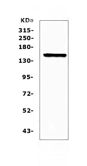 Figure 1. Western blot analysis of Flt3 / CD135 using anti-Flt3 / CD135 antibody (A00188-4). <br>Electrophoresis was performed on a 5-20% SDS-PAGE gel at 70V (Stacking gel) / 90V (Resolving gel) for 2-3 hours. The sample well of each lane was loaded with 50ug of sample under reducing conditions. <br>Lane 1: mouse brain tissue lysates. <br>After Electrophoresis, proteins were transferred to a Nitrocellulose membrane at 150mA for 50-90 minutes. Blocked the membrane with 5% Non-fat Milk/ TBS for 1.5 hour at RT. The membrane was incubated with rabbit anti-Flt3 / CD135 antigen affinity purified polyclonal antibody (Catalog # A00188-4) at 0.5 ug/mL overnight at 4?? then washed with TBS-0.1%Tween 3 times with 5 minutes each and probed with a goat anti-rabbit IgG-HRP secondary antibody at a dilution of 1:10000 for 1.5 hour at RT. The signal is developed using an Enhanced Chemiluminescent detection (ECL) kit (Catalog # EK1002) with Tanon 5200 system. A specific band was detected for Flt3 / CD135 at approximately 160KD. The expected band size for Flt3 / CD135 is at 113KD.