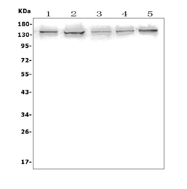 Figure 1. Western blot analysis of AXL using anti-AXL antibody (A00226-2).<br>  Electrophoresis was performed on a 5-20% SDS-PAGE gel at 70V (Stacking gel) / 90V (Resolving gel) for 2-3 hours. The sample well of each lane was loaded with 50ug of sample under reducing conditions.<br>  Lane 1: human A431 whole cell lysates, <br> Lane 2: human U2OS whole cell lysates, <br> Lane 3: human U-87MG whole cell lysates, <br> Lane 4: human PC-3 whole cell lysates, <br> Lane 5: human K562 whole cell lysates. <br>  After Electrophoresis, proteins were transferred to a Nitrocellulose membrane at 150mA for 50-90 minutes. Blocked the membrane with 5% Non-fat Milk/ TBS for 1.5 hour at RT. The membrane was incubated with rabbit anti-AXL antigen affinity purified polyclonal antibody (Catalog # A00226-2) at 0.5 μg/mL overnight at 4°C, then washed with TBS-0.1%Tween 3 times with 5 minutes each and probed with a goat anti-rabbit IgG-HRP secondary antibody at a dilution of 1:5000 for 1.5 hour at RT. The signal is developed using an Enhanced Chemiluminescent detection (ECL) kit (Catalog # EK1002) with Tanon 5200 system. A specific band was detected for AXL at approximately 140KD. The expected band size for AXL is at 98KD.