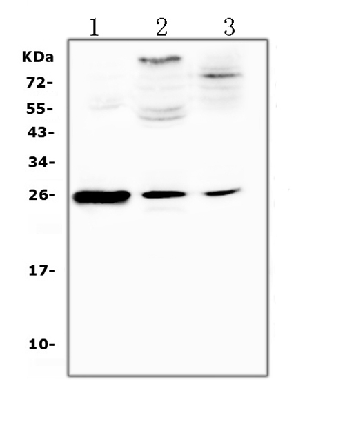 Figure 1. Western blot analysis of Crp using anti-Crp antibody (A00249-1). </b><br>Electrophoresis was performed on a 5-20% SDS-PAGE gel at 70V (Stacking gel) / 90V (Resolving gel) for 2-3 hours. The sample well of each lane was loaded with 50ug of sample under reducing conditions. <br>Lane 1: rat spleen tissue lysates, <br>Lane 2: rat brain tissue lysates, <br>Lane 3: rat thymus tissue lysates. <br>After Electrophoresis, proteins were transferred to a Nitrocellulose membrane at 150mA for 50-90 minutes. Blocked the membrane with 5% Non-fat Milk/ TBS for 1.5 hour at RT. The membrane was incubated with rabbit anti-Crp antigen affinity purified polyclonal antibody (Catalog # A00249-1) at 0.5 μg/mL overnight at 4°C, then washed with TBS-0.1%Tween 3 times with 5 minutes each and probed with a goat anti-rabbit IgG-HRP secondary antibody at a dilution of 1:10000 for 1.5 hour at RT. The signal is developed using an Enhanced Chemiluminescent detection (ECL) kit (Catalog # EK1002) with Tanon 5200 system. A specific band was detected for Crp at approximately 25KD. The expected band size for Crp is at 25KD.