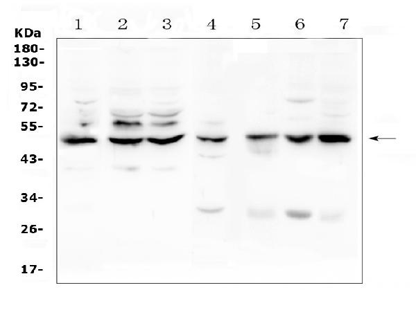 Figure 1. Western blot analysis of TNF Receptor I? using anti-TNF Receptor I? antibody (A00294-3). <br>Electrophoresis was performed on a 5-20% SDS-PAGE gel at 70V (Stacking gel) / 90V (Resolving gel) for 2-3 hours. The sample well of each lane was loaded with 50ug of sample under reducing conditions. <br>Lane 1: human Hela whole cell lysate,<br>Lane 2: human K562 whole cell lysate,<br>Lane 3: human Caco-2 whole cell lysate,<br>Lane 4: rat liver tissue lysates,<br>Lane 5: mouse small intestine tissue lysates,<br>Lane 6: mouse liver tissue lysates,<br>Lane 7: mouse HEPA1-6 whole cell lysate. <br>After Electrophoresis, proteins were transferred to a Nitrocellulose membrane at 150mA for 50-90 minutes. Blocked the membrane with 5% Non-fat Milk/ TBS for 1.5 hour at RT. The membrane was incubated with rabbit anti-TNF Receptor I? antigen affinity purified polyclonal antibody (Catalog # A00294-3) at 0.5 μg/mL overnight at 4°C, then washed with TBS-0.1%Tween 3 times with 5 minutes each and probed with a goat anti-rabbit IgG-HRP secondary antibody at a dilution of 1:10000 for 1.5 hour at RT. The signal is developed using an Enhanced Chemiluminescent detection (ECL) kit (Catalog # EK1002) with Tanon 5200 system. A specific band was detected for TNF Receptor I? at approximately 50KD. The expected band size for TNF Receptor I? is at 50KD.